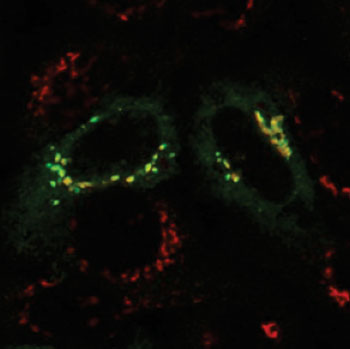 Image: In normal cells, phosphotransferase (green) is shown overlapping with the Golgi apparatus (red), which indicates that phosphotransferase is located in the Golgi, where it should be (Photo courtesy of Dr. Eline van Meel, Washington University School of Medicine).